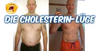 Die Cholesterin-Lüge